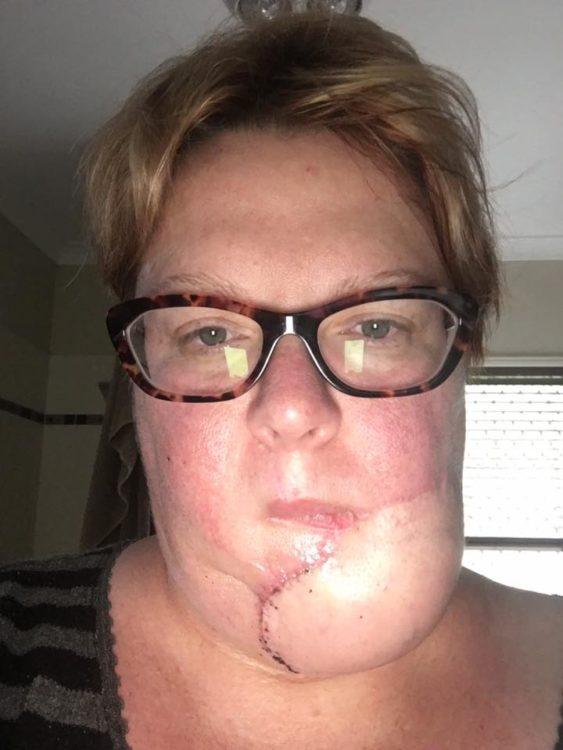 skin cancer closeup selfie