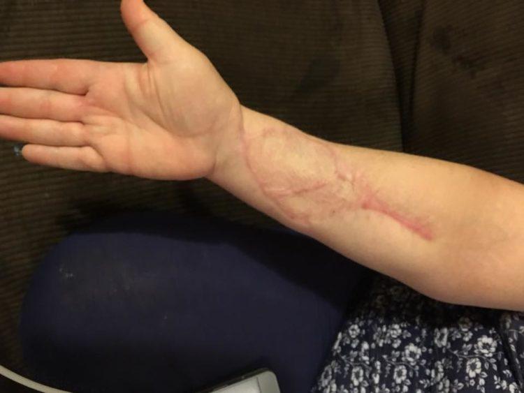 skin cancer arm surgery healing