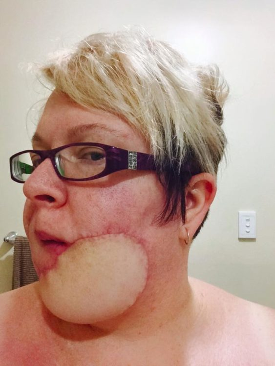 side view woman chin with skin cancer