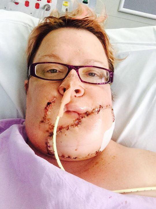 Jodie Dominy Shares Photos of Lump That Turned into Rare ...