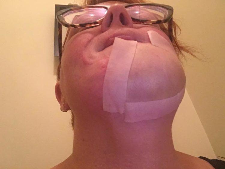 skin cancer chin bandage
