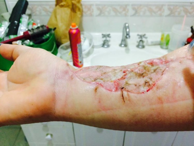 skin cancer arm removal closeup