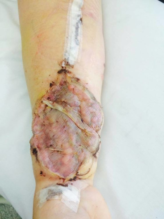 close up skin cancer arm removal