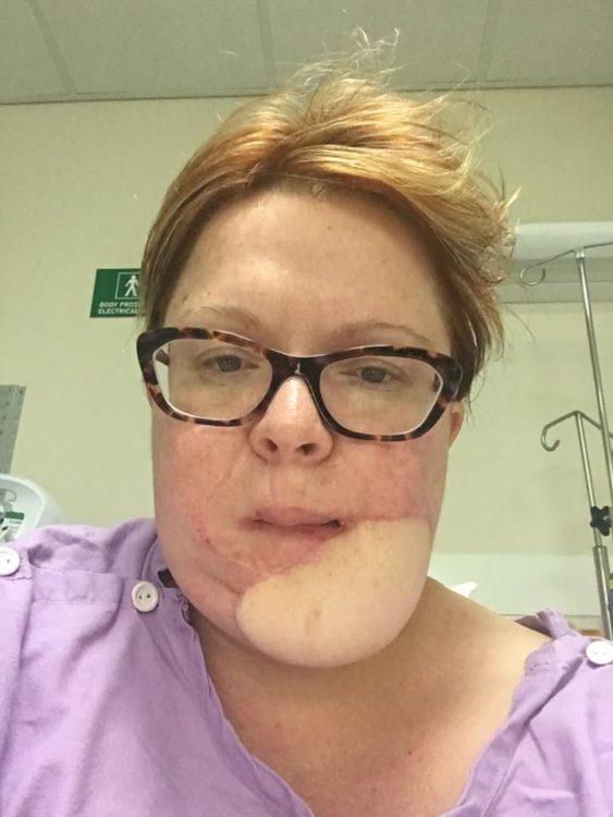 skin cancer photo post-op