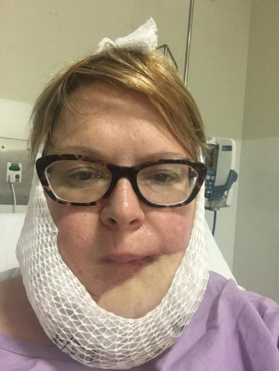 skin cancer post op chin bandage