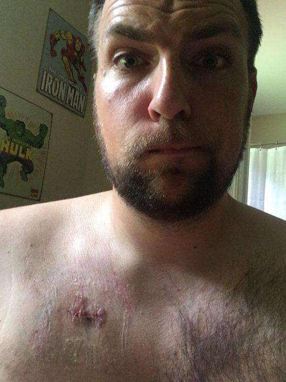 Justin port scar photo