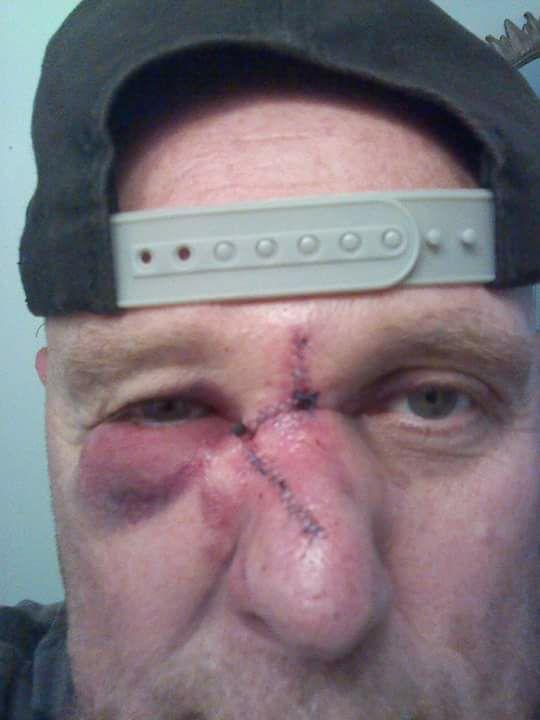 cancer patient closeup face surgery