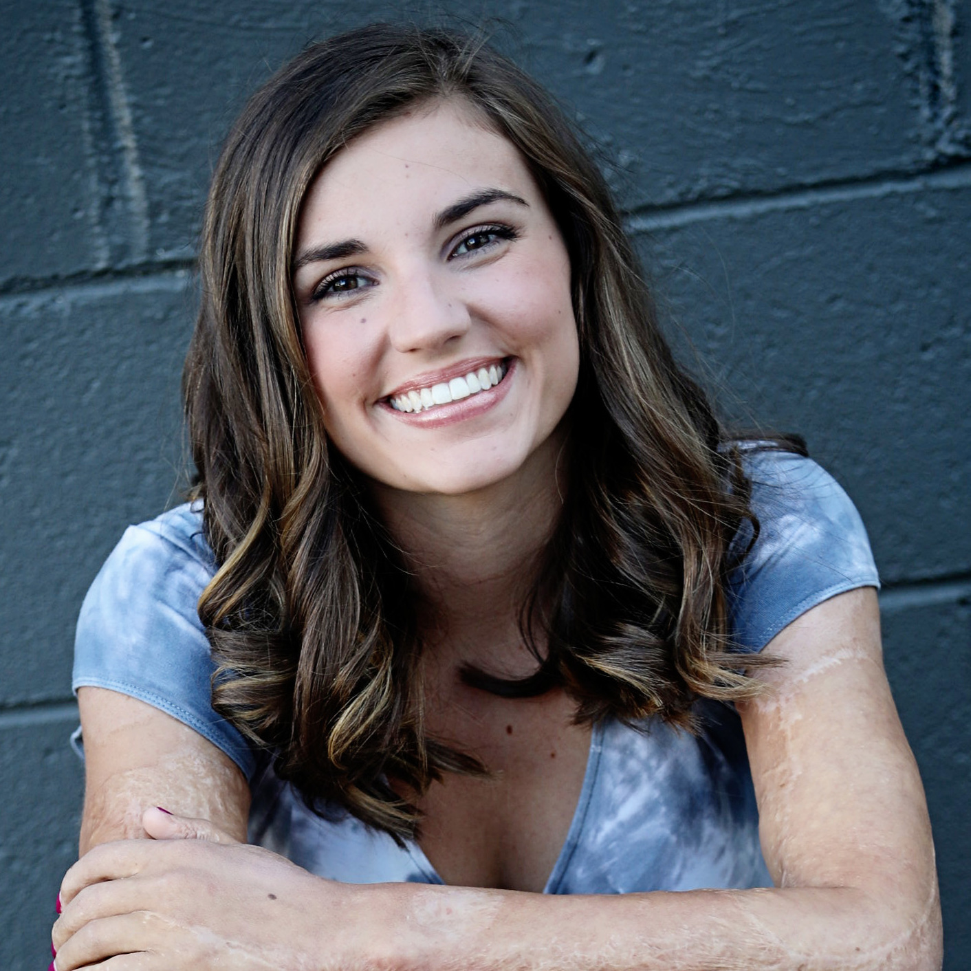 Kilee sitting against wall, with arms around legs