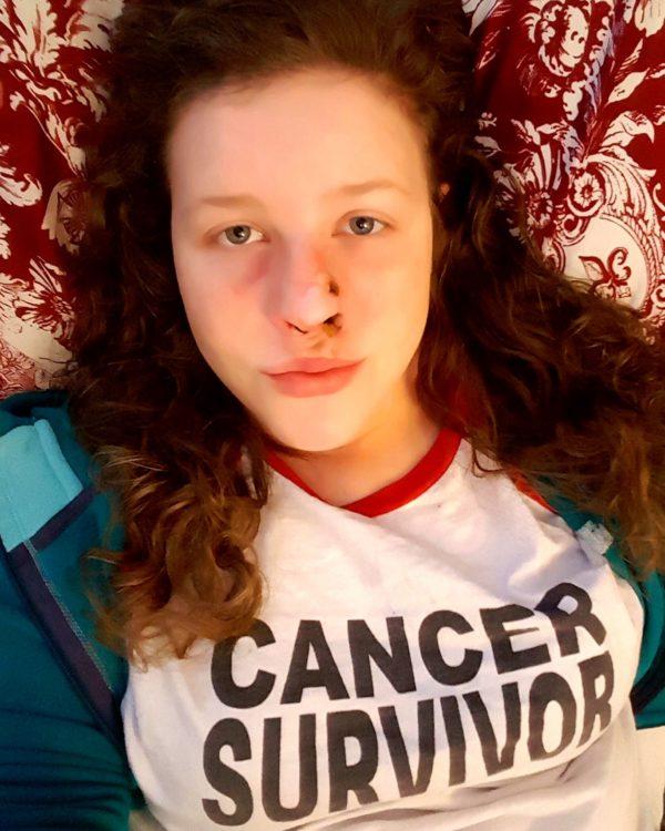 woman with skin cancer 'cancer sucks' shirt