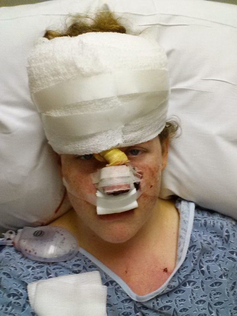 skin cancer woman after surgery