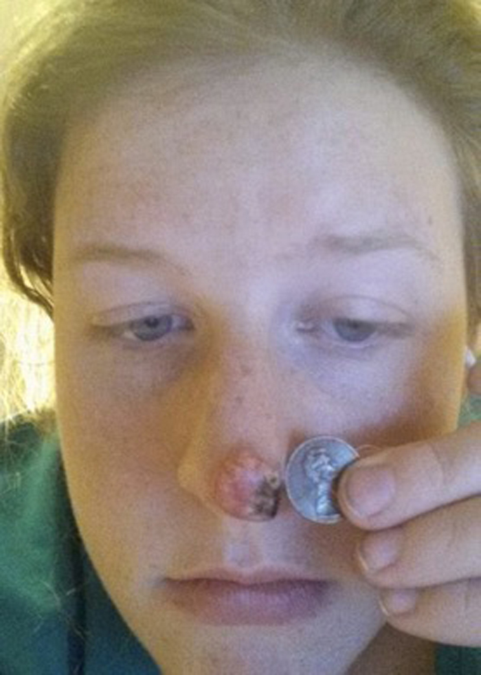 woman with skin cancer holding quarter to nose