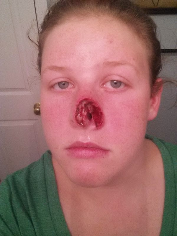 graphic photo skin cancer woman nose after surgery