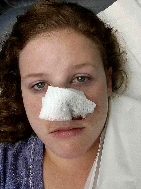 woman with skin cancer bandage on nose