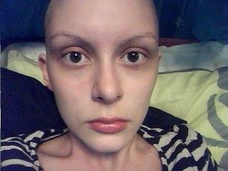 bald female cancer patient