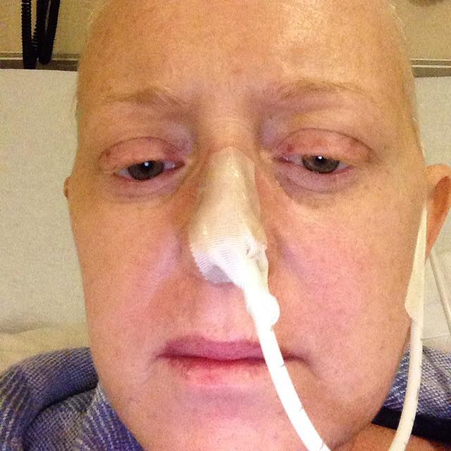 cancer patient with NG tube