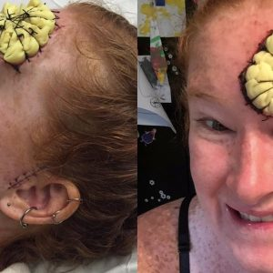 Red haired woman with sponge like item stitched on her forehead.