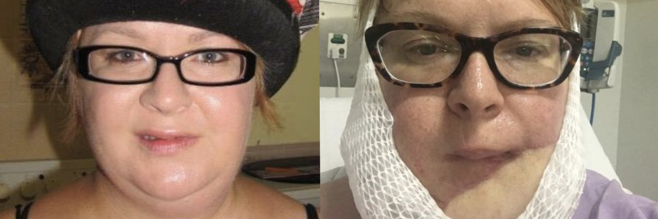 Side by Side photos of Dominy before and after skin cancer.