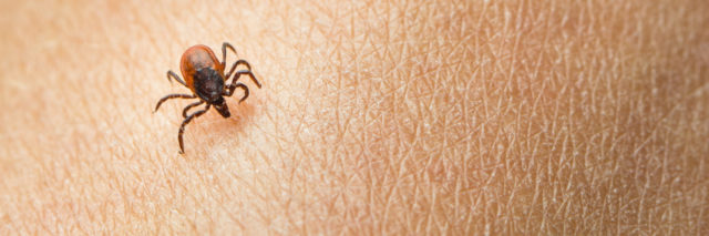 tick on a person's skin
