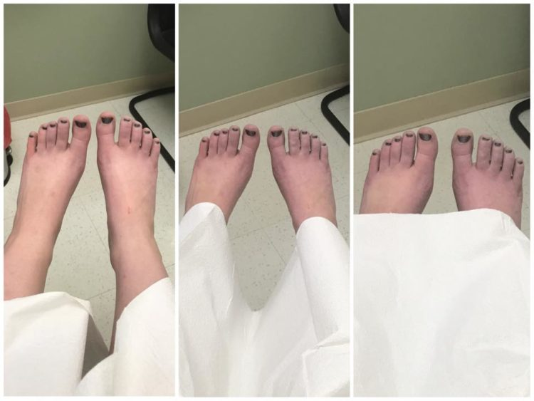 blood pooling in a woman's feet