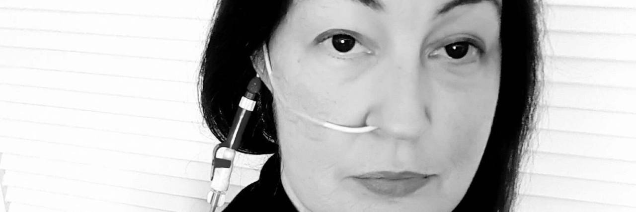 Woman with feeding tube in her nose.