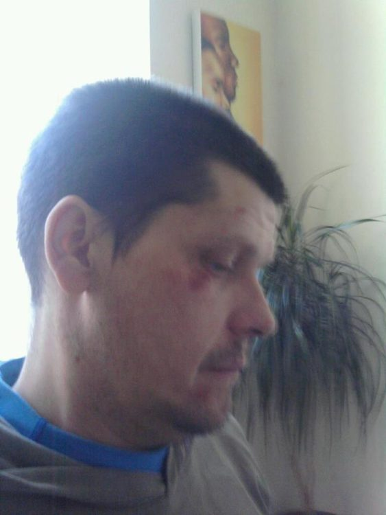 man with scratches and bruises on his face