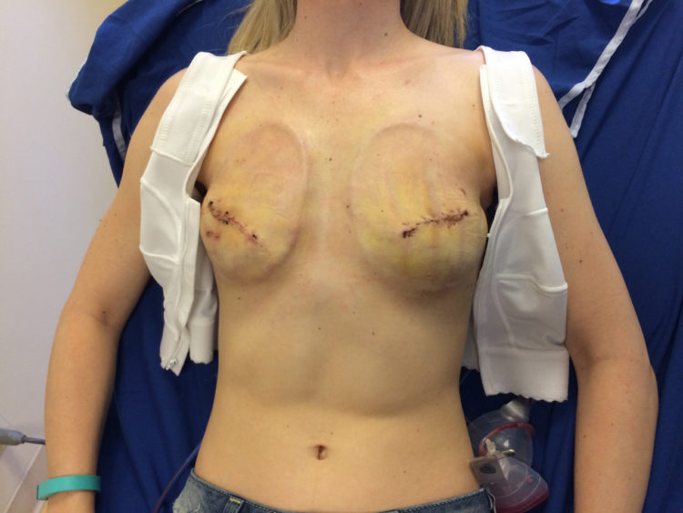 Jessica Sliwerski mastectomy