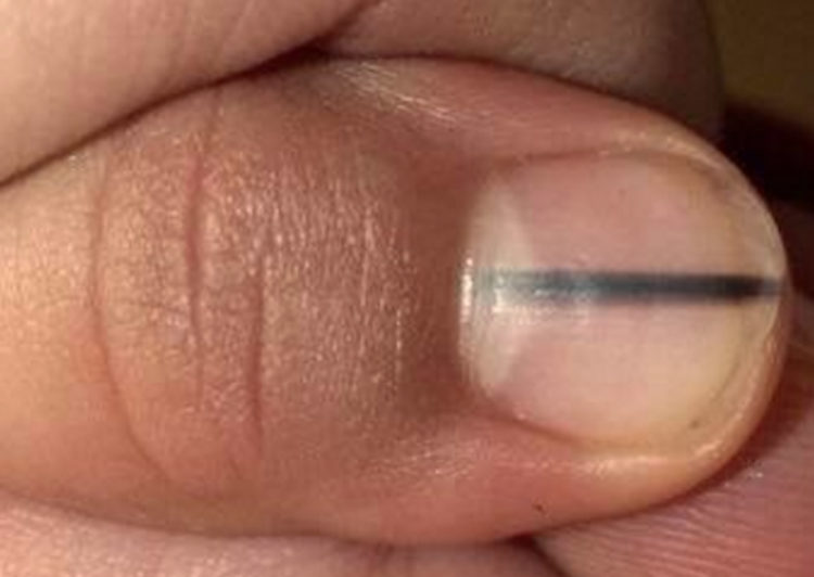Melanoma skin cancer nail