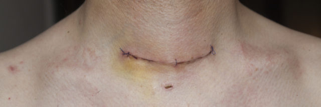 thyroid gland scar