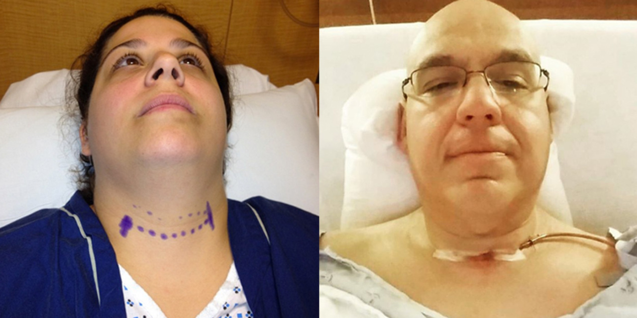 24 Selfies That Show What Thyroid Cancer Really Looks Like The