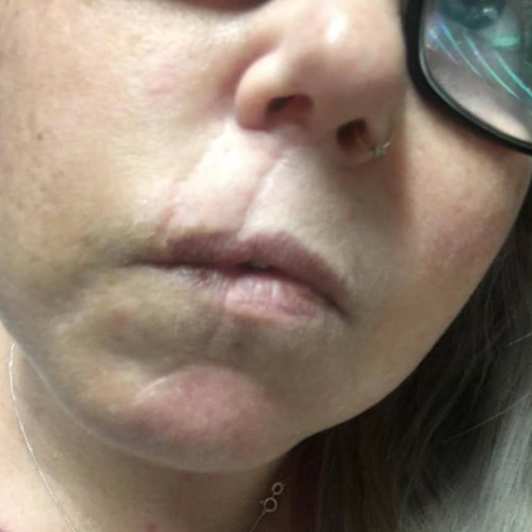 Pruzy Chamberlain lip closeup