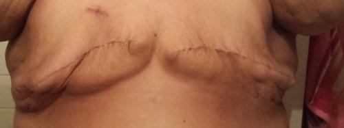 Charity Bryan 4 weeks post bilateral mastectomy