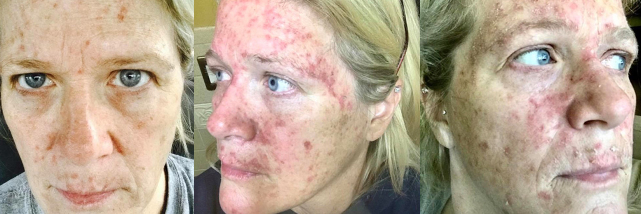 Wendy Sobczyk skin cancer feature photo