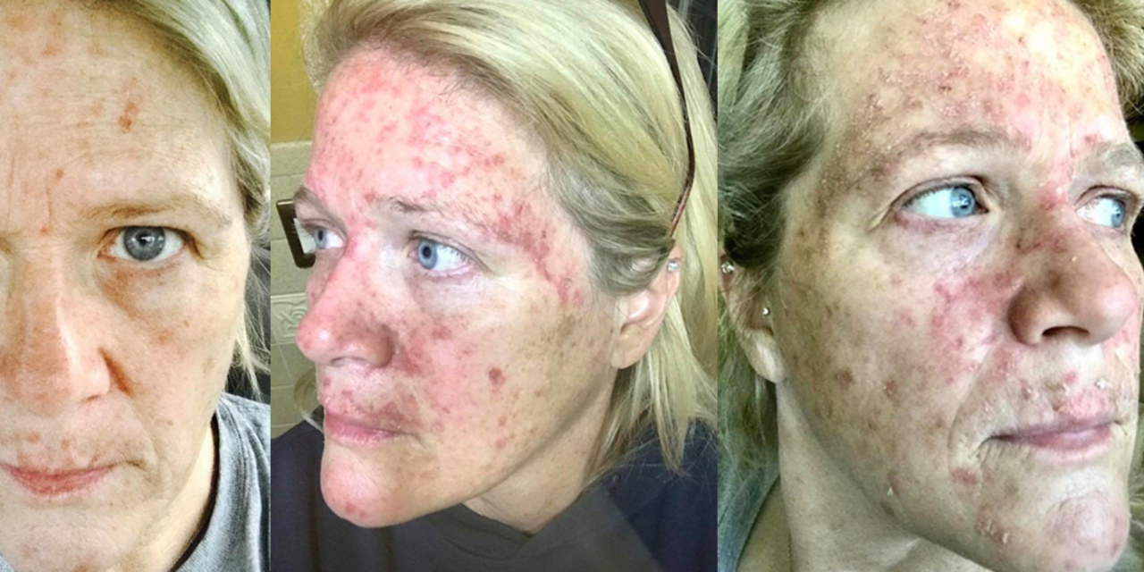 What Treating Actinic Keratosis With Chemo Cream Looks Like The Mighty