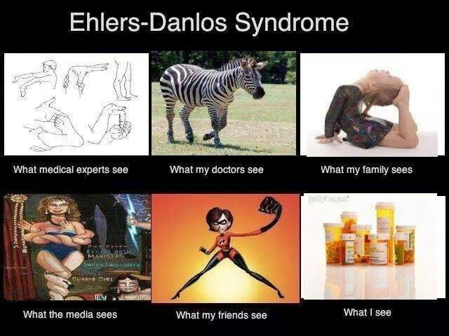 how different people view ehlers-danlos syndrome