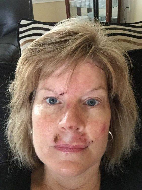 Judy Cloud 10 days post surgery