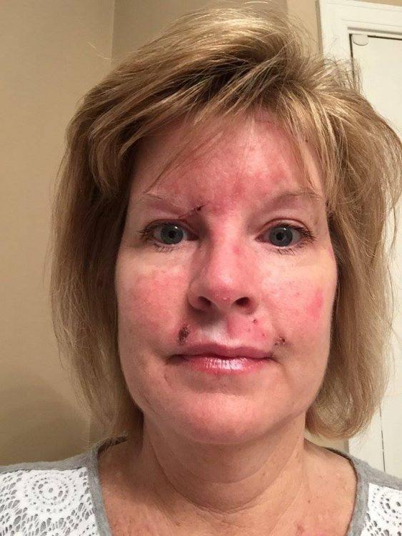 Judy Cloud 13 days post surgery