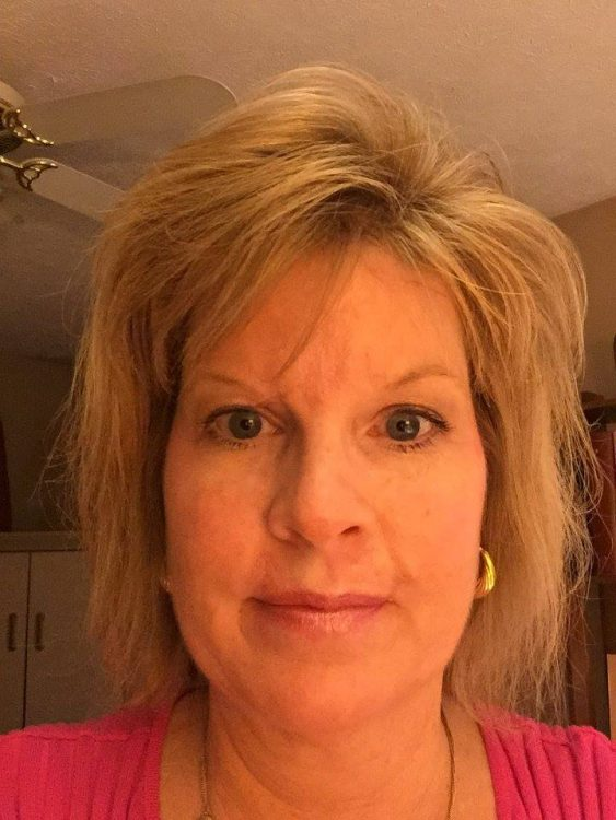 Judy Cloud 3 weeks post surgery