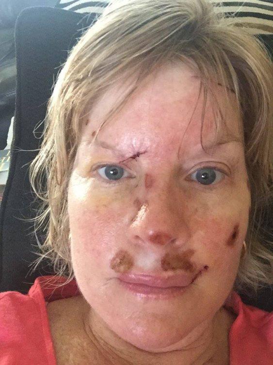 Judy Cloud 4 days post surgery