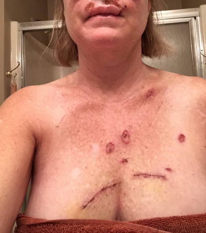 Judy Cloud 5 days post surgery chest wounds