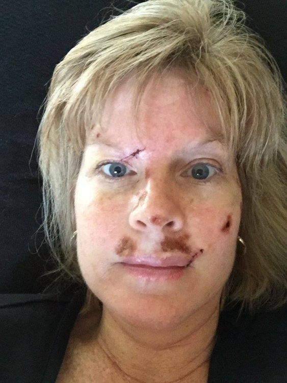 Judy Cloud 6 days post surgery