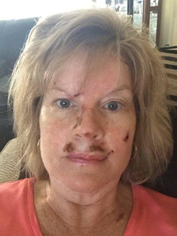 Judy Cloud 8 days post surgery