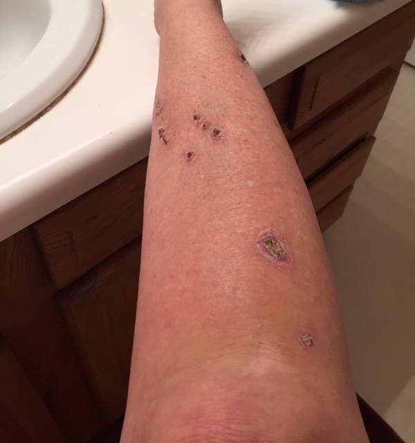 Judy Cloud lower leg incision 17 days post surgery