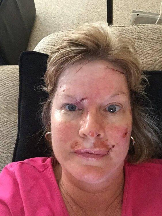 Judy Cloud morning after surgery