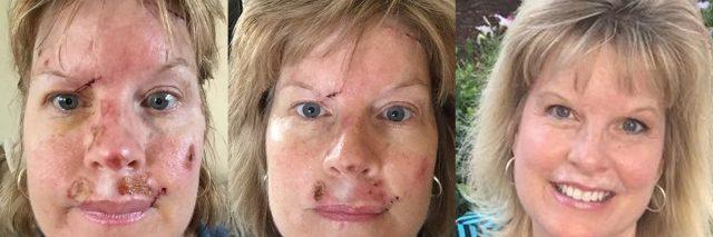 Judy Cloud skin cancer feature