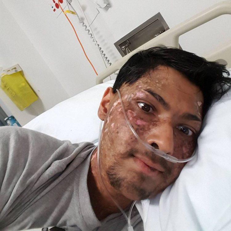Nikhil with nasal prongs on