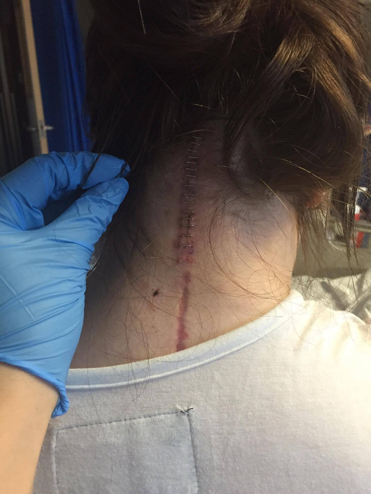 A picture of the back of the writer's neck with a surgical scar.