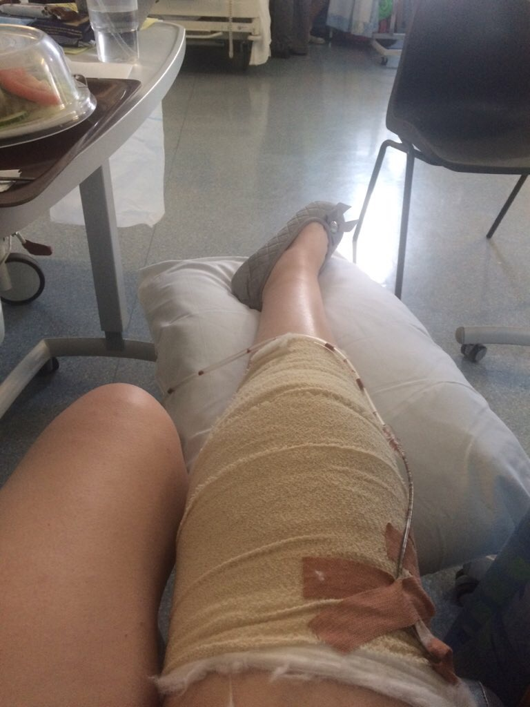A picture of the writer's leg in bandage wrap.