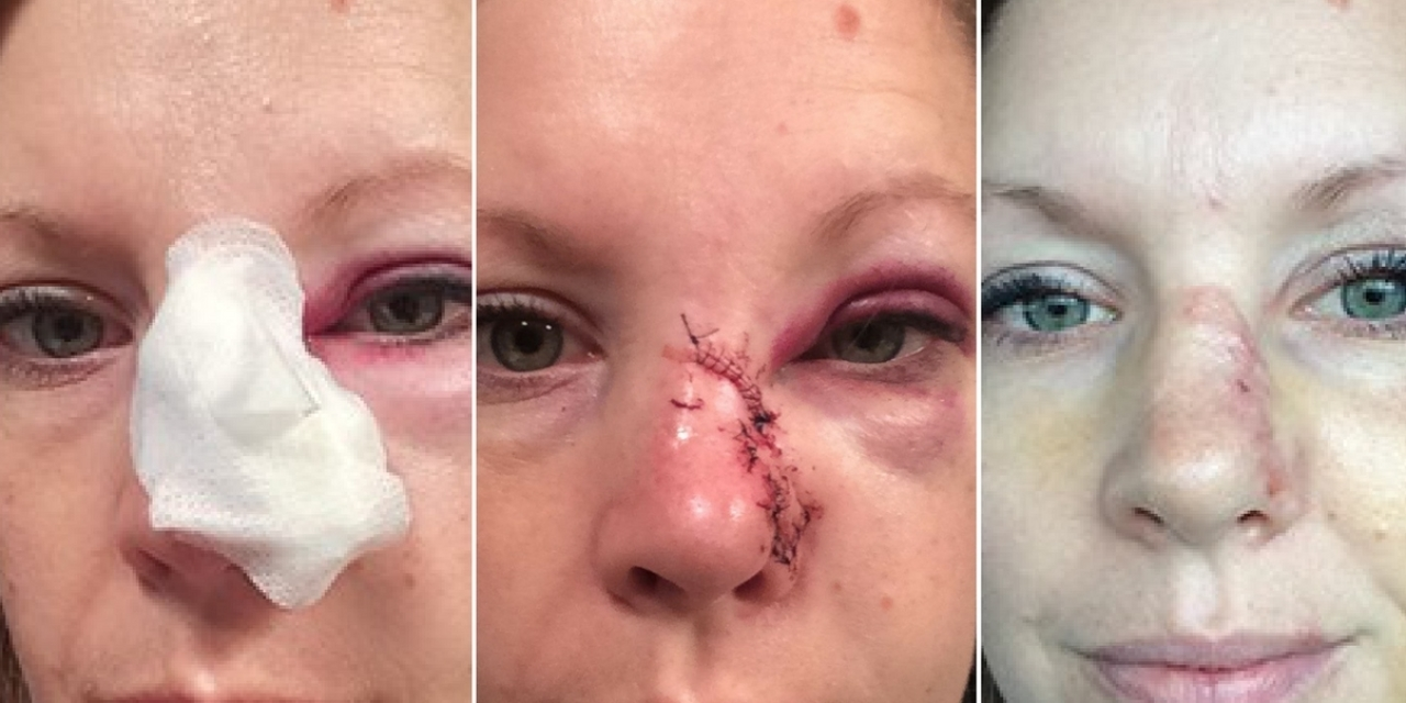 Mel Gunnell Shares Photos Of Scab On Nose That Was Skin Cancer The Mighty