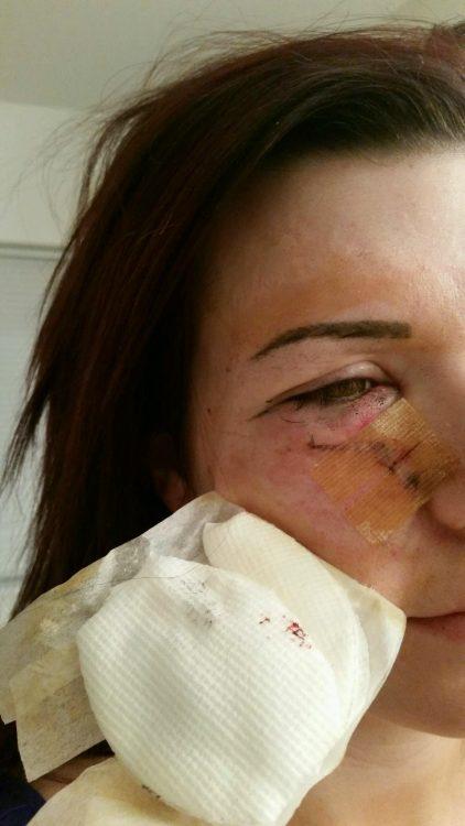 Shealun Campisi skin cancer recovery