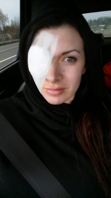 Shealun Campisi skin cancer surgery eye patch